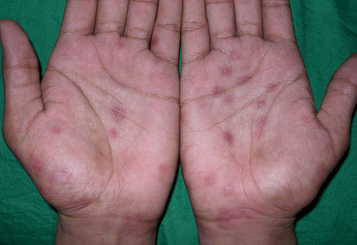 Сыпь аллергия фото
