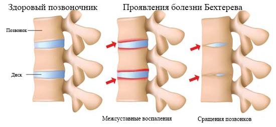 Бехтерева болезнь симптомы у мужчин фото