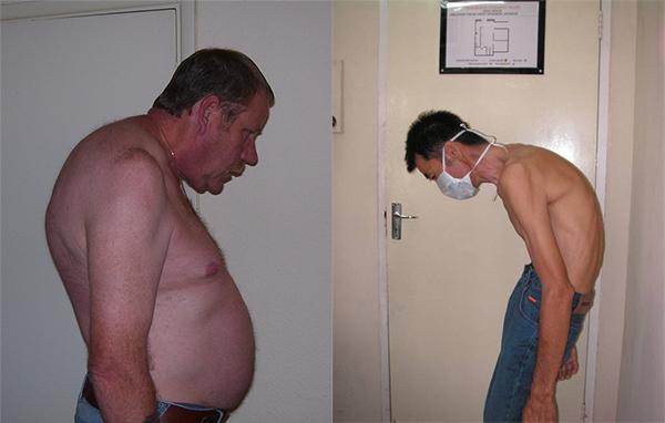 Болезнь Бехтерева у мужчин лечение симптомы причины