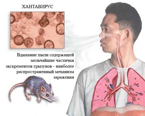 Мышиная лихорадка симптомы и лечение Симптоматика