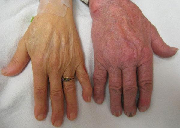 Низкий гемоглобин у женщин и детей: причины и последствия, как повысить, лечение