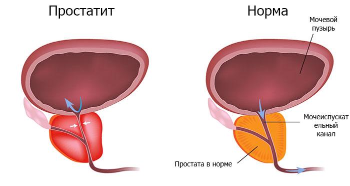Симптомы и виды простатита