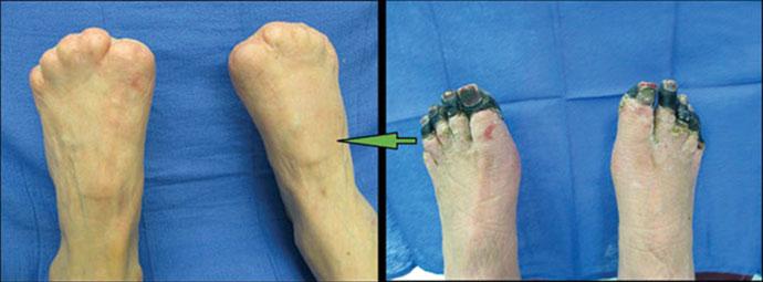 Как начинается гангрена на пальцах ног, что делать и как ее лечить