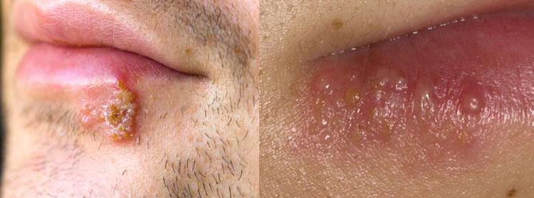 Герпес на губах: причины, фото, лечение в домашних условиях.