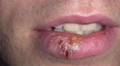 Герпес на губах. Как лечить герпес на губах и какое средство лучше?