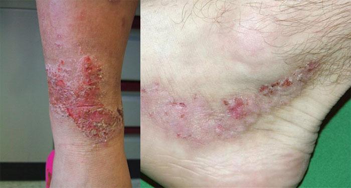 Нейродермит (диффузный и ограниченный): симптомы и лечение, фото заболевания на ногах и руках