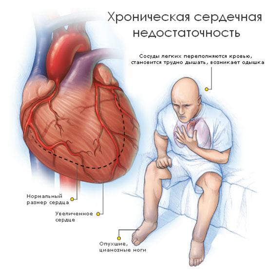 Как лечить одышку при сердечной недостаточности