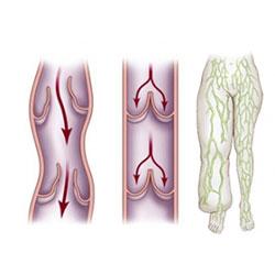 Лимфостаз нижних конечностей - лечение в домашних условиях