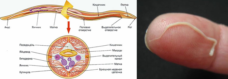 Что такое аскаридоз