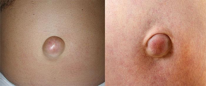 Маленькая пупочная грыжа у взрослых лечение без операции
