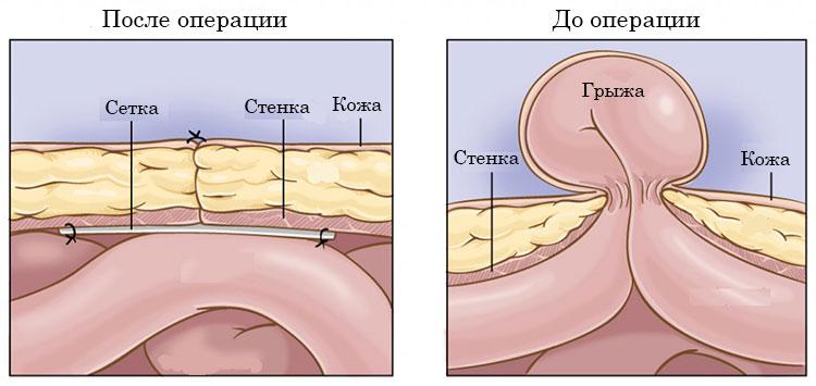 Пупковая грыжа у мужчин симптомы фото