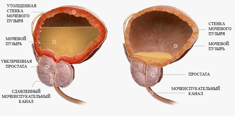 Эхографические признаки гиперплазии предстательной железы