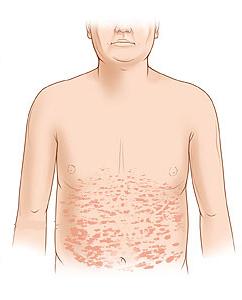 Розовый лишай у человека: симптомы, лечение и фотографии