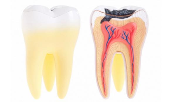 Болит зуб под коронкой - почему возникает боль и как ее лечить