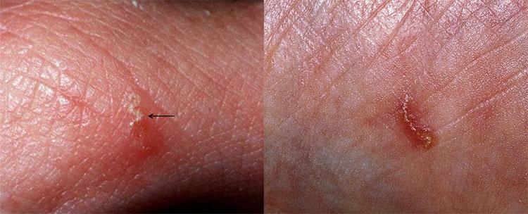 Как выглядит чесотка у человека: фото как проявляется у взрослых