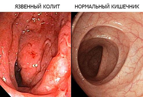Колит толстого кишечника симптомы и лечение
