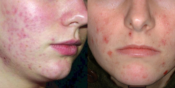 Сыпь на щеках и на носу