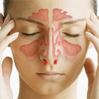 Почему часто идет кровь из носа у взрослого