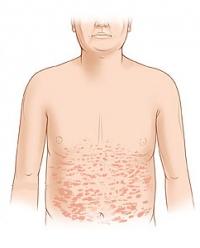 Симптомы и лечение розового лишая у человека