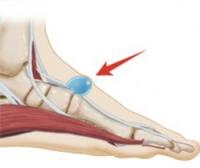 Гигрома голеностопного сустава фото причины и лечение