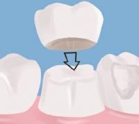 Под коронкой флюс что делать — Болезни полости рта